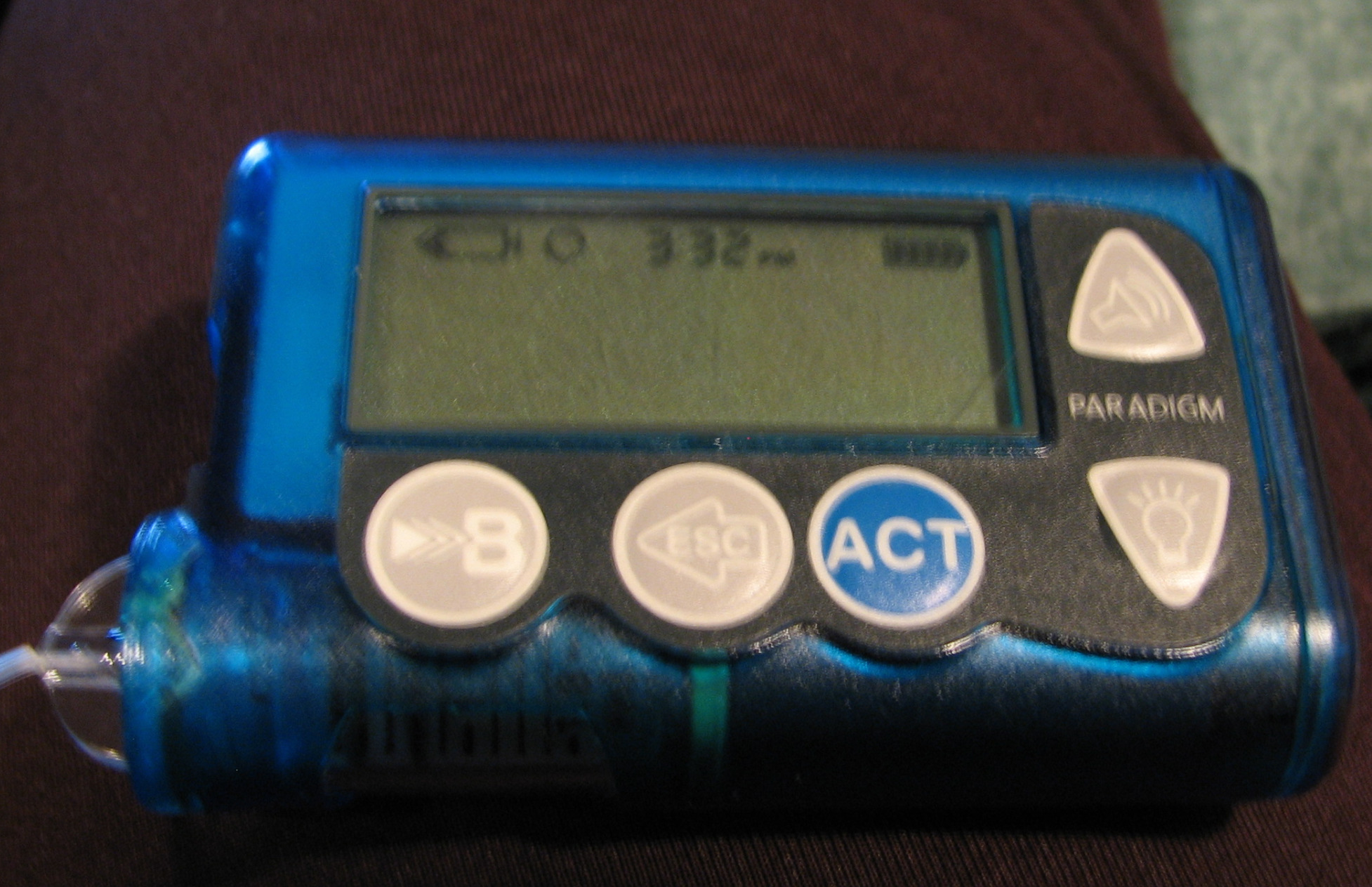 types of insulin pump